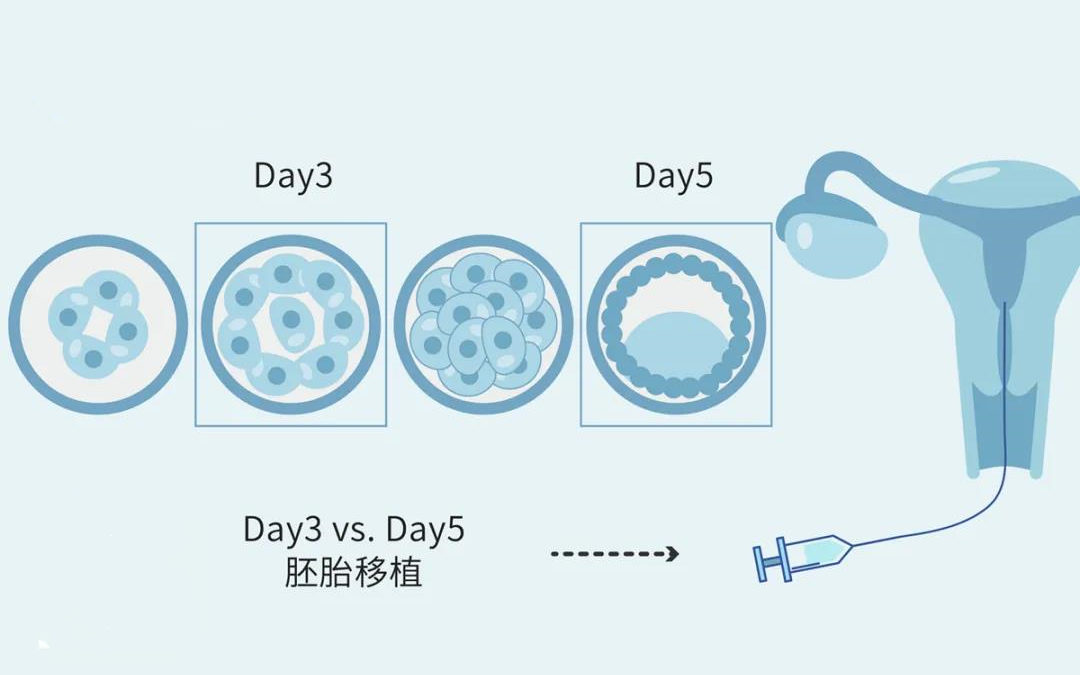 凍結胚移植の利点は何ですか?